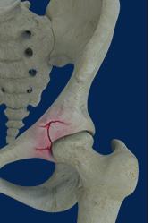 Hip & Pelvis Fracture Surgery New York | Hip Arthroscopy New York